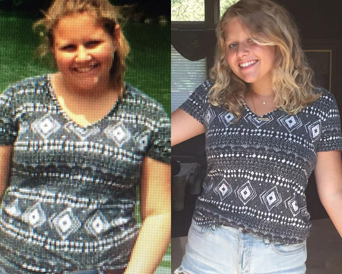 Summer fat camp success stories at Camp Pocono Trails by Tony Sparber, the best weight loss camp